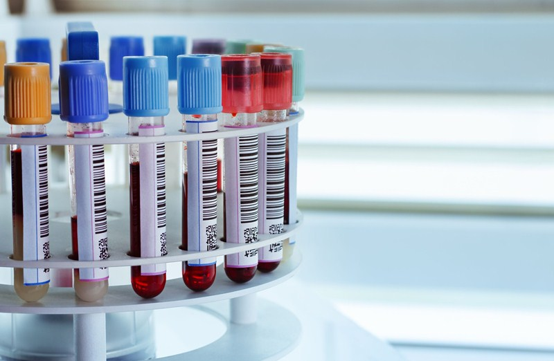 Guidance for employers and businesses on the coronavirus